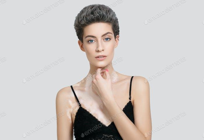 Vitiligo Frau Schönheit Porträt