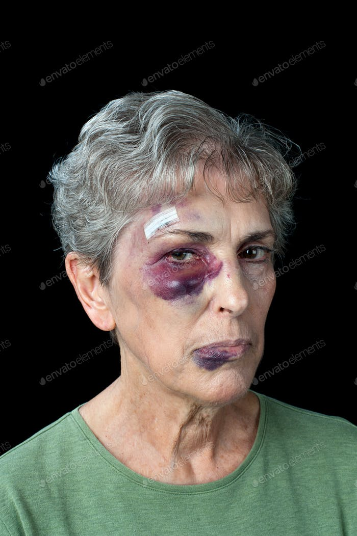 Geschlagene ältere Frau