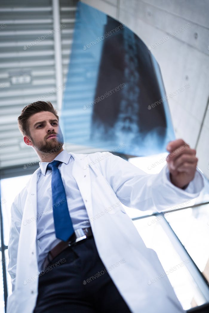 Doctor examining X-ray report