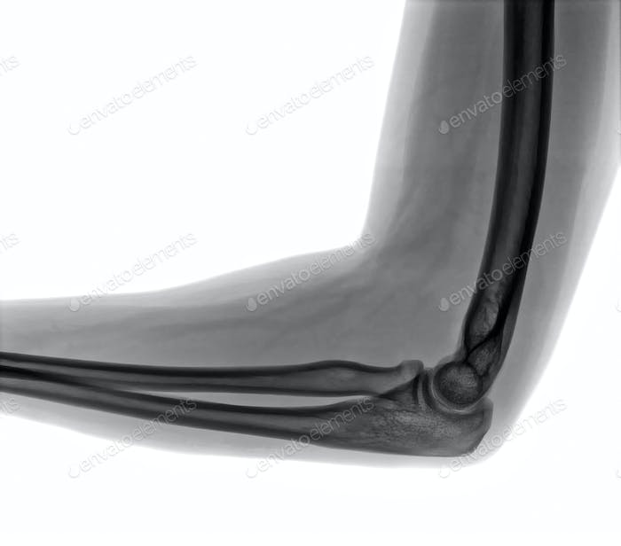 Elbow X-ray view