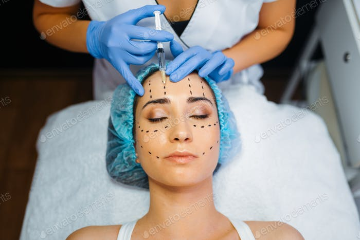 Cosmetician makes botox injection in dotted lines