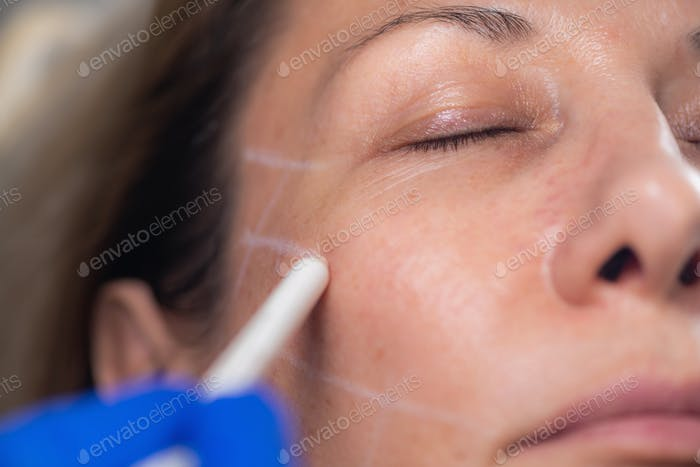 Aesthetic Mesotherapy Thread Face Lifting. Anti-aging Cosmetic Treatment