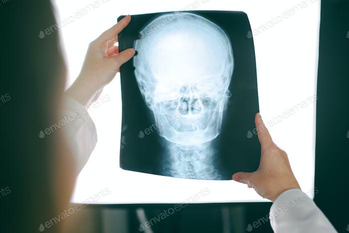 Ärztin Blick auf Röntgenbild des menschlichen Kopfes