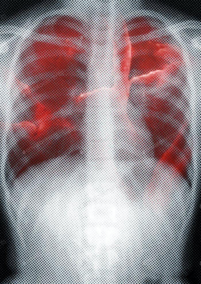 Infektion der Atemwege auf Röntgenaufnahmen aufgrund von Coronavirus