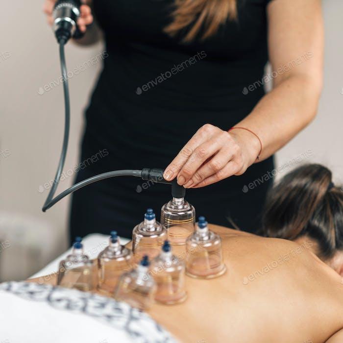 Vakuum-Therapie Therapeut legt transparente Glasbecher auf den Rücken der Frau