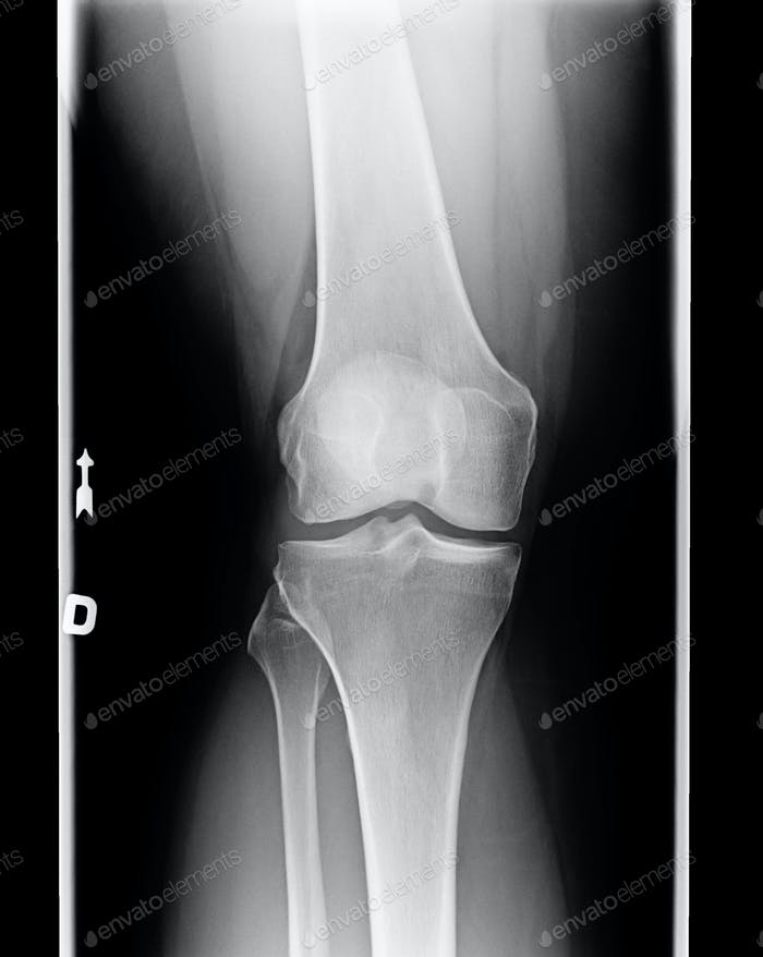 X-ray of knee with Chondromalacia condition