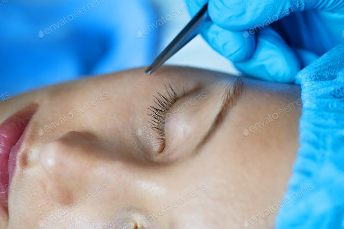 White woman aesthetic and cosmetic surgery concept