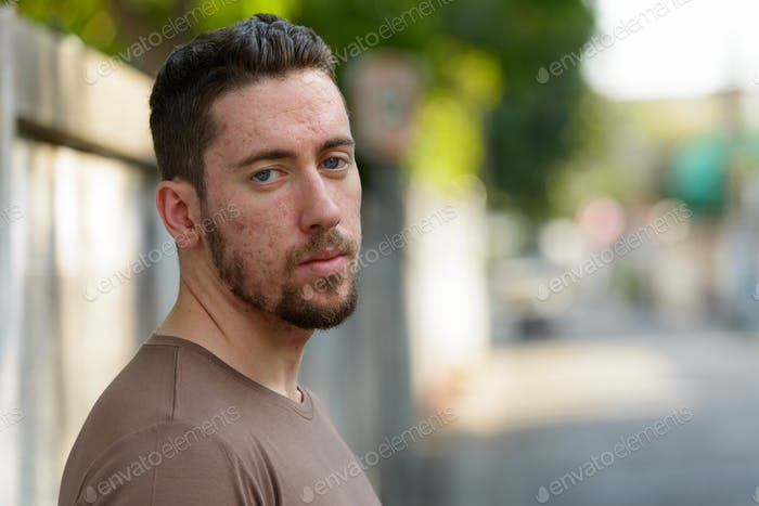 Face of young Caucasian man with acne skin outdoors
