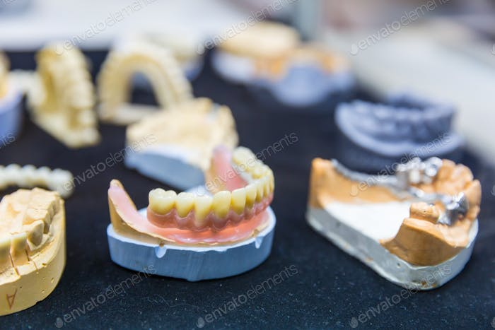 Denture treatment, dental implants closeup