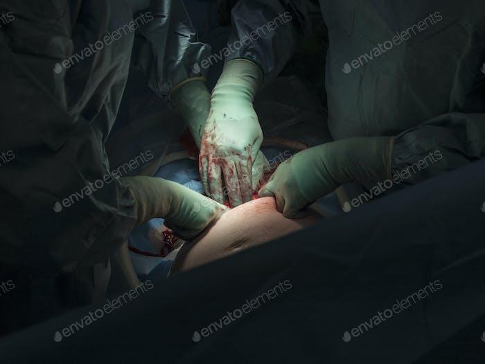 Zugeschnittenes Bild von Chirurgen, die Kaiserschnitt im Operationssaal durchführen