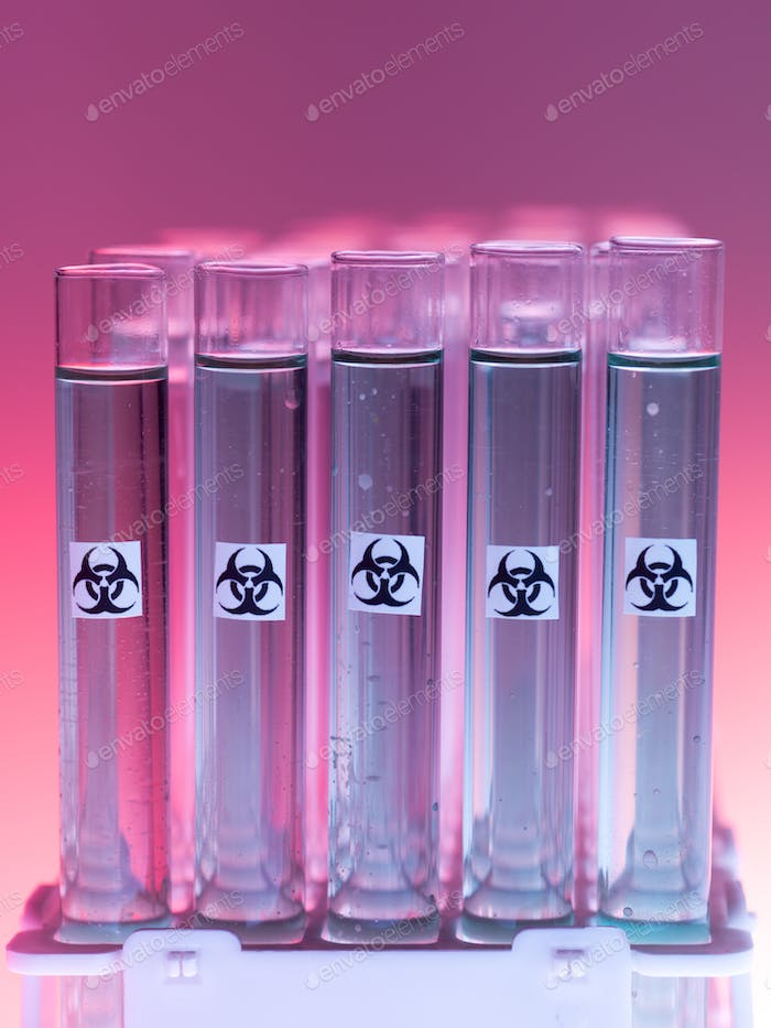 laboratory test tubes with liquid biohazardous substance