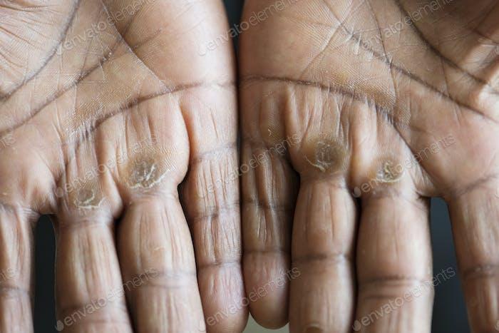 Closeup of calloused black hands