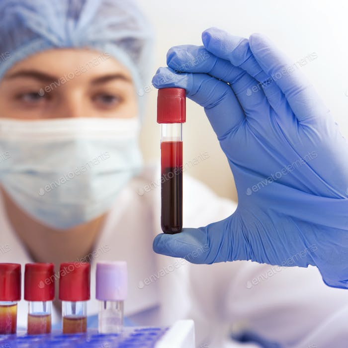 Woman lab worker holding test tube doing blood analysis
