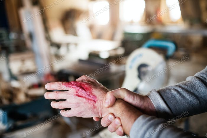 Man with an injured hand after accident at work in the carpentry workshop.