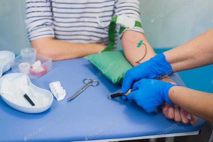 Verfahren der Blutentnahme aus der Vene im Krankenhaus