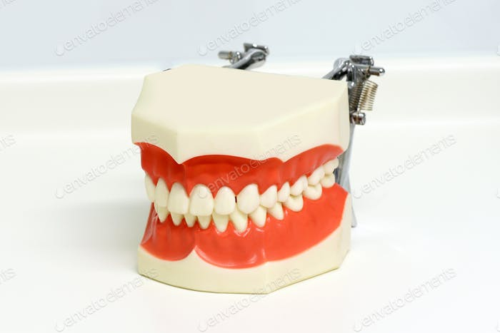Dental model of upper and lower teeth