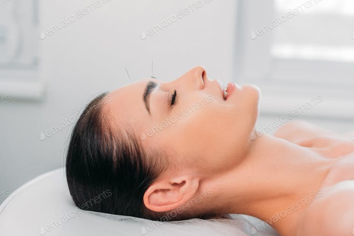 side view of woman having acupuncture therapy in spa salon