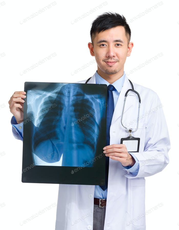 Asian medical doctor holding x-ray