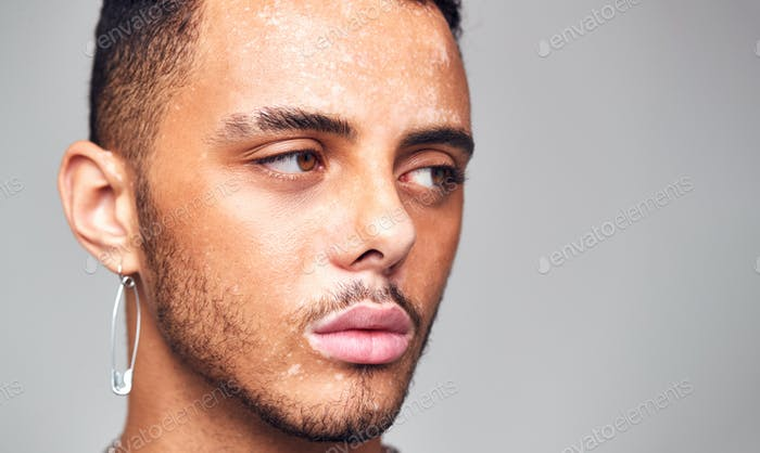 Thoughtful Young Man With Skin Pigmentation Disorder Looking Off Camera In Studio
