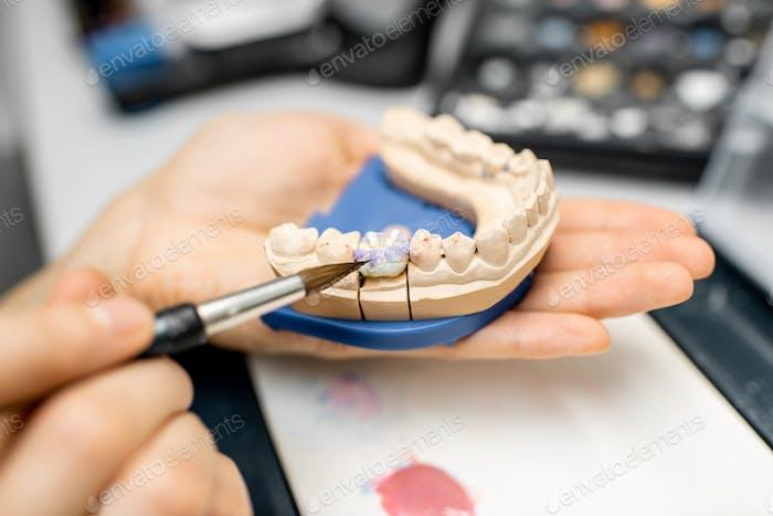 Técnico dental para colorear prótesis dentales