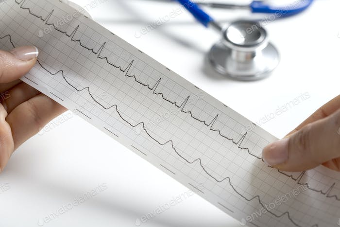 Hands Holding A Regular Ecg With A Stethoscope