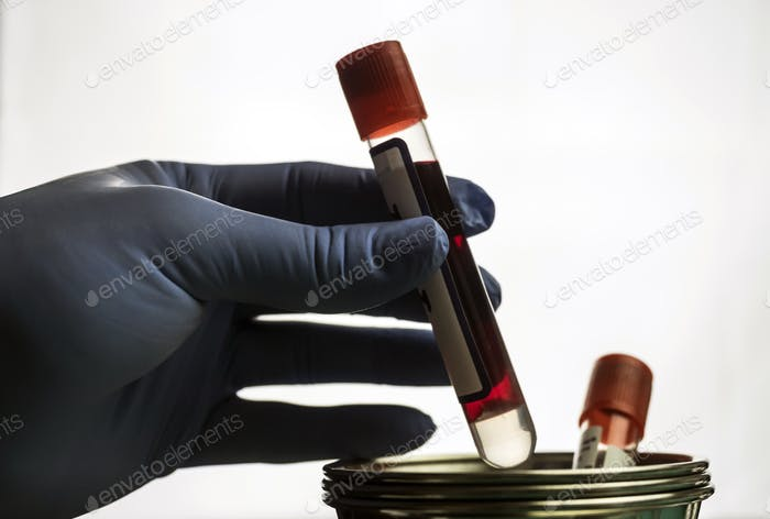 Doctor holds blood sample at a hospital table, conceptual image