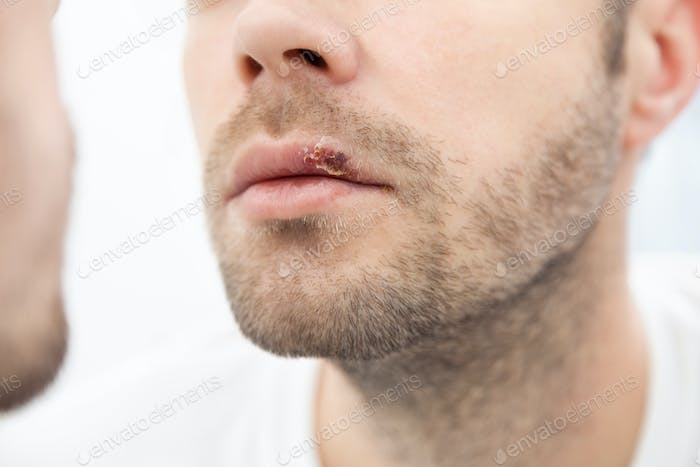Young man suffering from herpes on his mouth