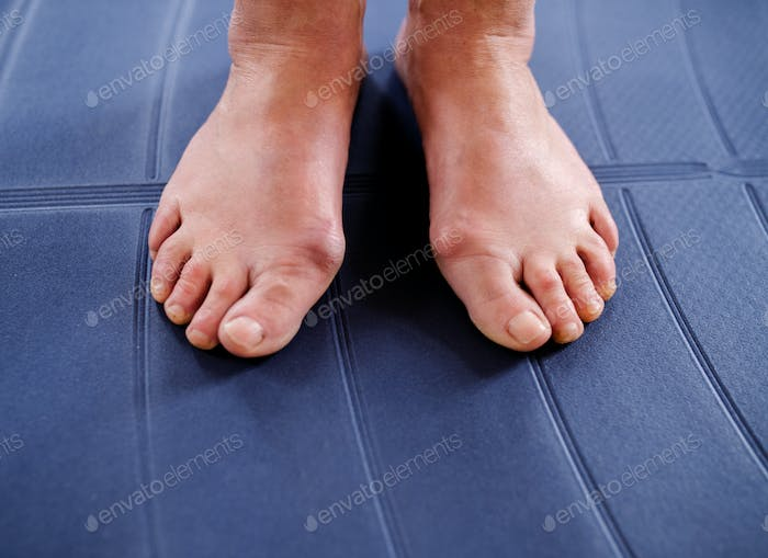 Top view of bare feet of older woman suffering from hallux valgus