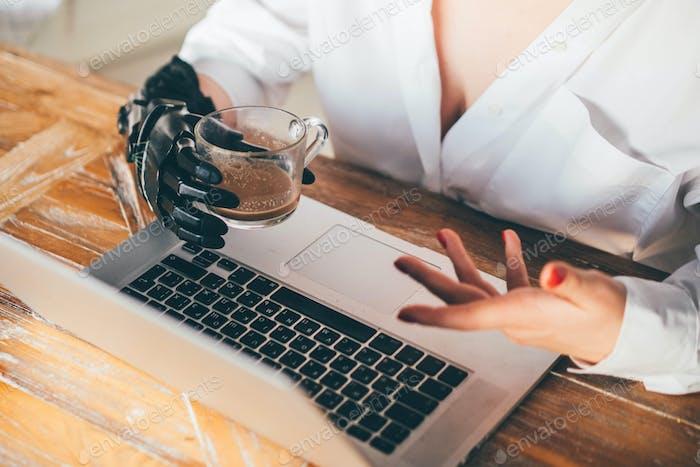 Frau mit prothetischer Hand arbeitet am Laptop.