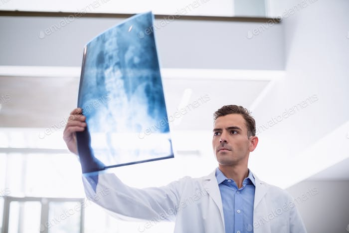Doctor examining x-ray of patient