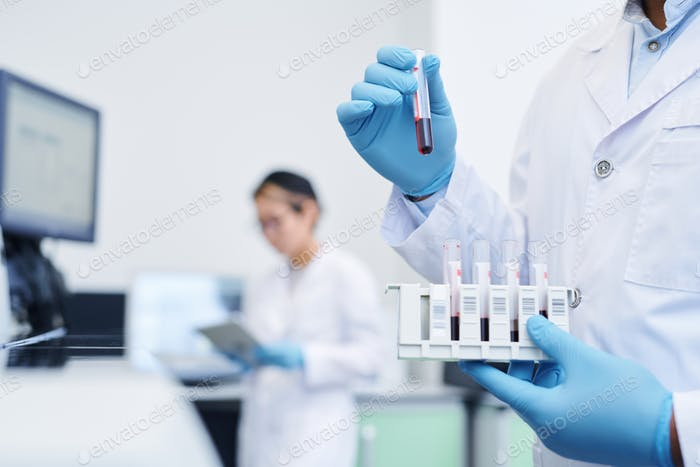 Preparing medical sample for virus research