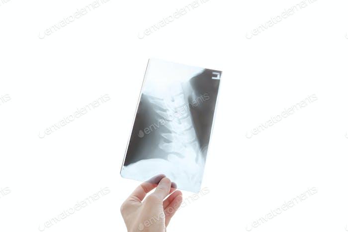 Radiologe Blick auf die Halswirbelsäule Bild