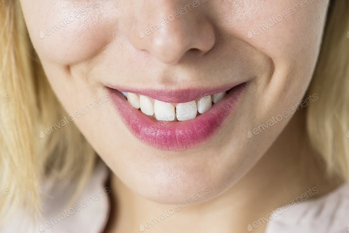 Closeup of smiling woman's teeth
