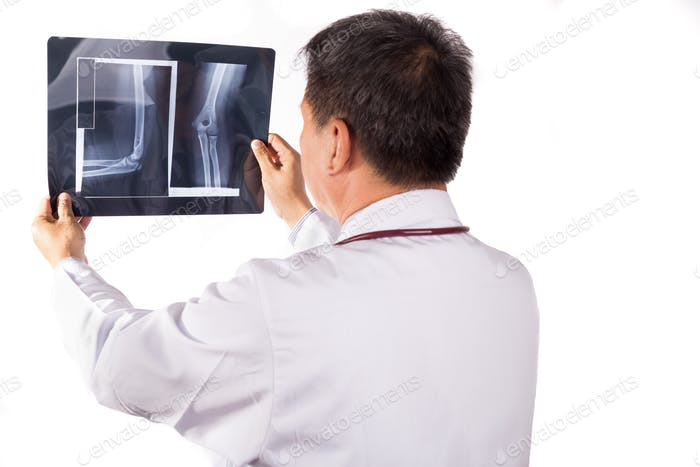 Matured Asian orthopedic medical doctor examining X-ray film