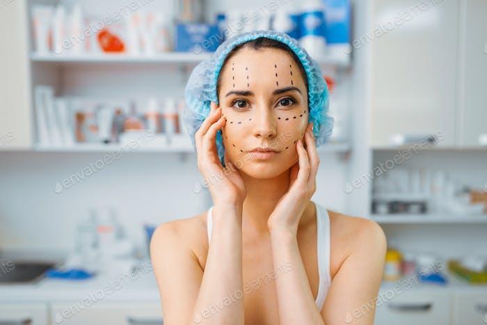 Patient mit Marker im Gesicht, Vorbereitung auf Botox