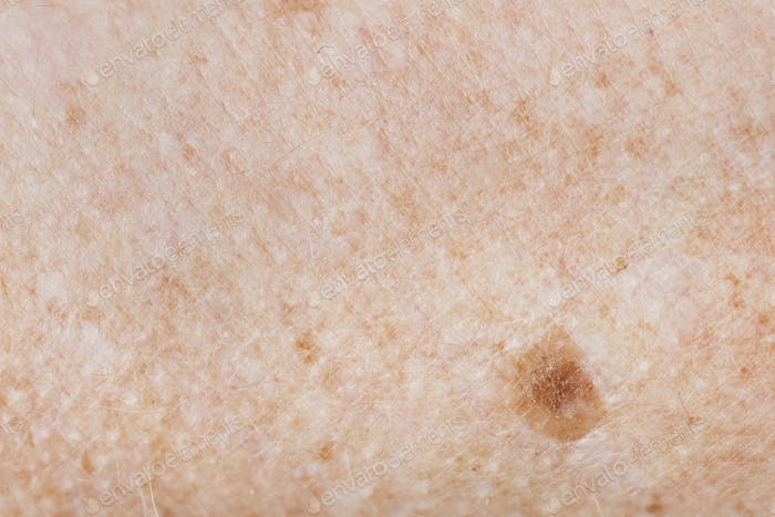 Closeup of freckled skin