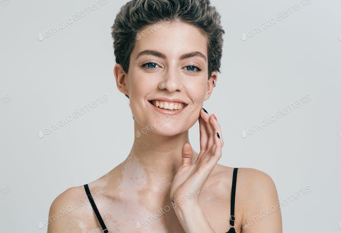 Vitiligo weiße Frau Schönheit Porträt