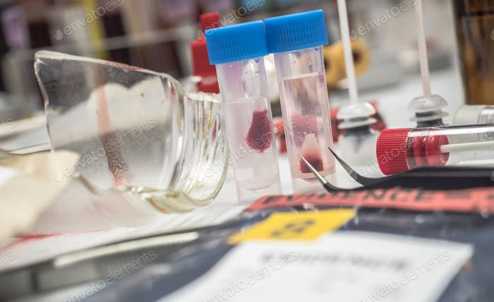 Swabs with blood sample to be analyzed in the laboratory, conceptual image