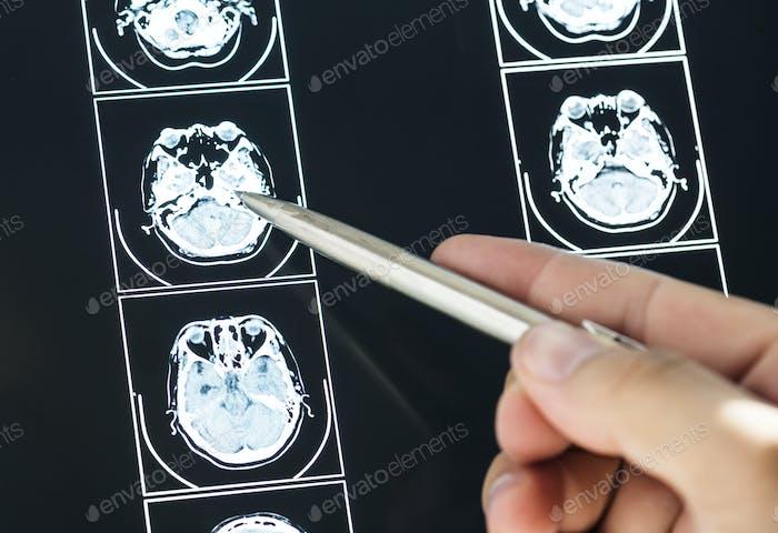 Nahaufnahme des Gehirn-MRT-Untersuchungsergebnisses